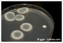 カビ毒検査|食品検査のビジョン...